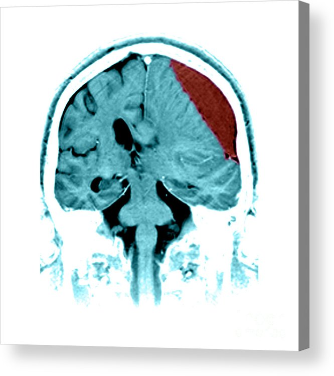 A Global Neurosurgery Approach to Reducing the Burden of Traumatic Acute Subdural Hematoma: A Narrative Review
